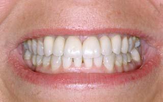 sonrisa-2-despues